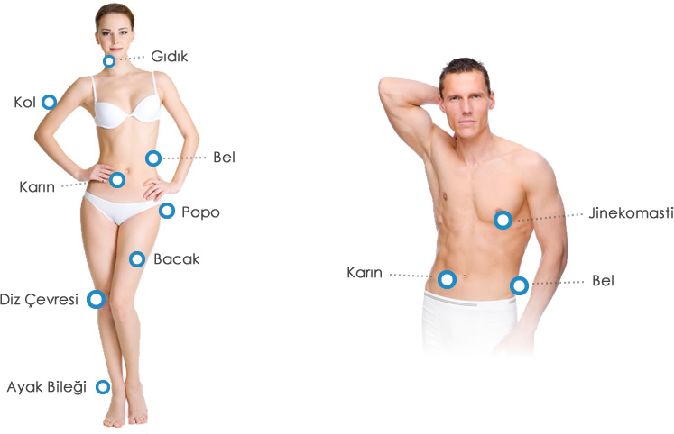 lazer liposuction ile estetik